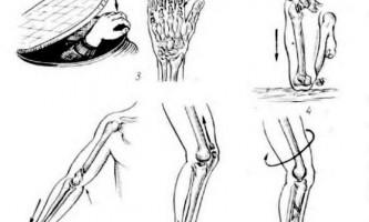 Закриті травми кінцівок - невідкладна рентгенодіагностика
