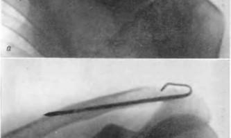 Закриті травми плечового суглоба - невідкладна рентгенодіагностика