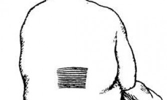 """Жовчна колька - діагностика """"гострого живота"""""""