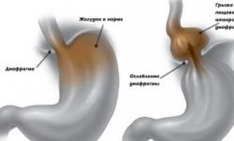 Жовчний гастрит: характерні симптоми і лікування