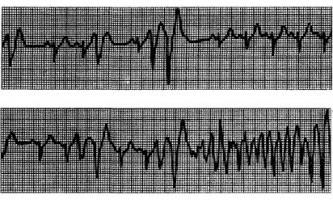 Шлуночкова аритмія внаслідок фізичного навантаження - аритмії серця (5)